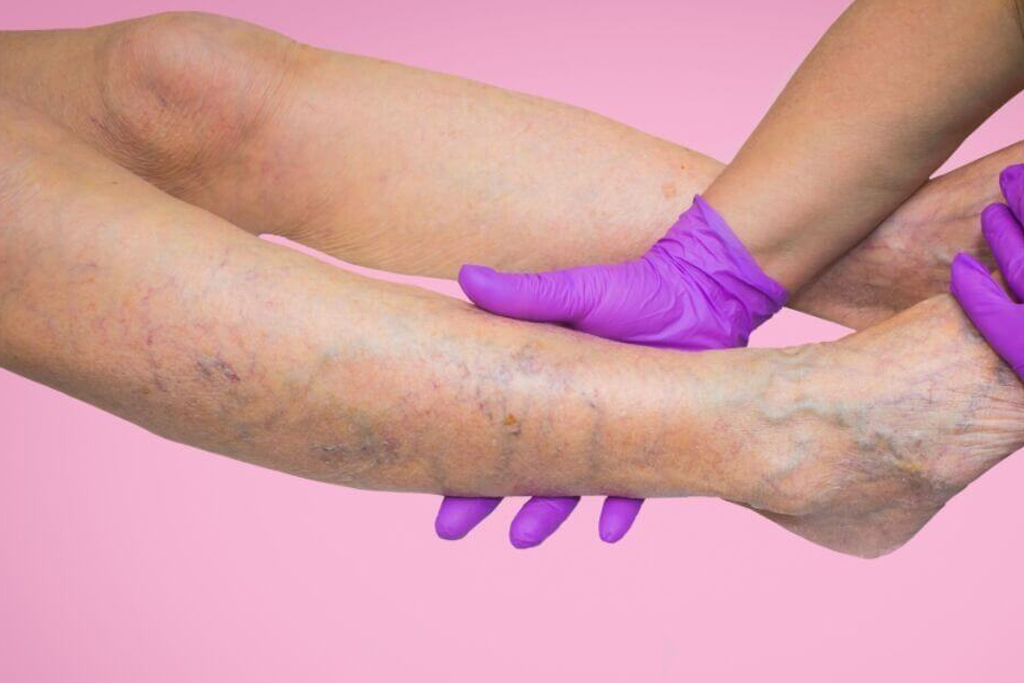 Varicose veins essential oils